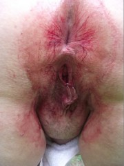 Free porn pics of bloody ass 1 of 3 pics